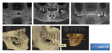 平板CT 打造3D微创种植牙新时代